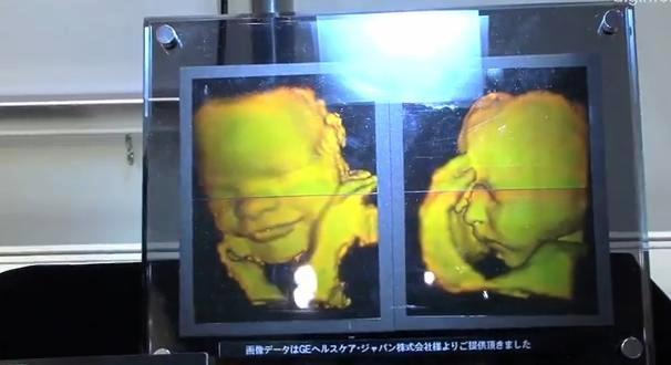 En Japón ya pueden imprimir un holograma 3D de un bebé por nacer.