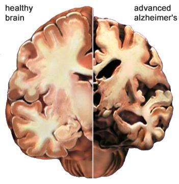 Descubren posible cura contra el Alzheimer