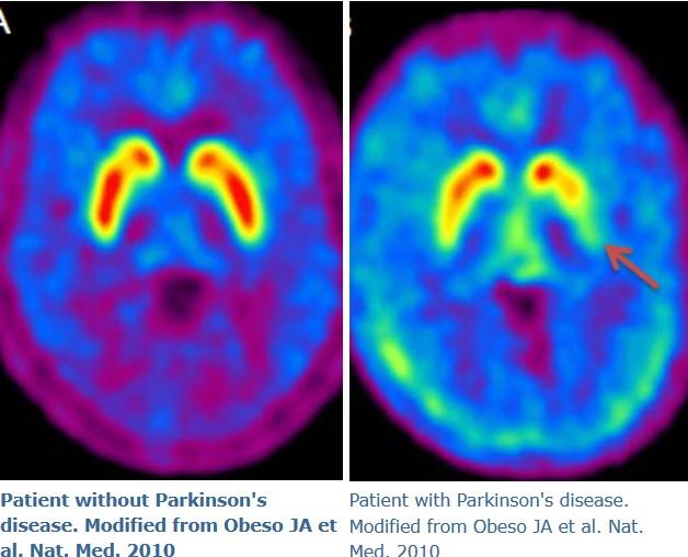 Una droga utilizada para tratar el hígado podría ser la clave en la cura del Parkinson