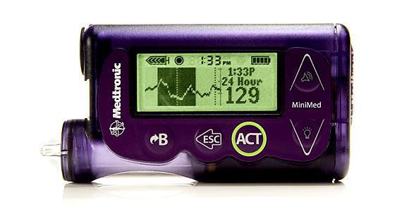 Aprueban en USA el uso de un páncreas artificial portátil para combatir la diabetes