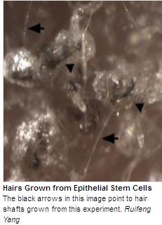 Hacen crecer pelo a partir de células madre, por primera vez
