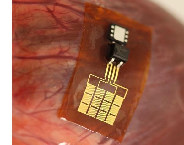 Inventan mini planta de energía para alimentar marcapasos