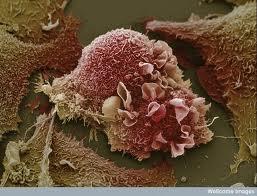 Identifican proteínas que originan metástasis en el cerebro de células tumorales