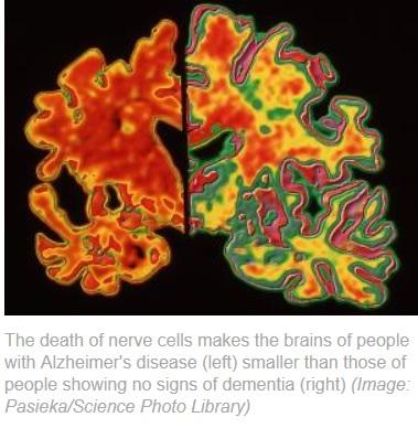 Análisis de sangre podría detectar el Alzheimer 3 años antes que aparezca