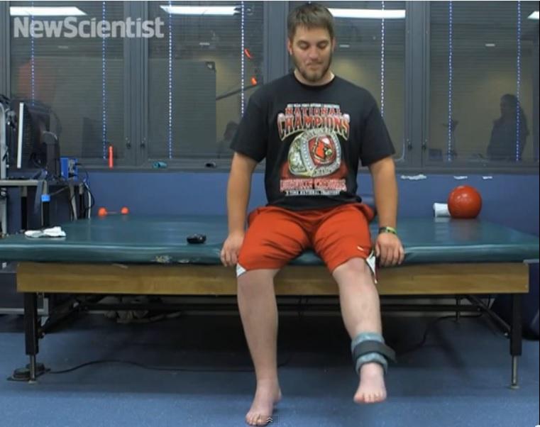 Implante en médula espinal revive piernas de paciente paralizado