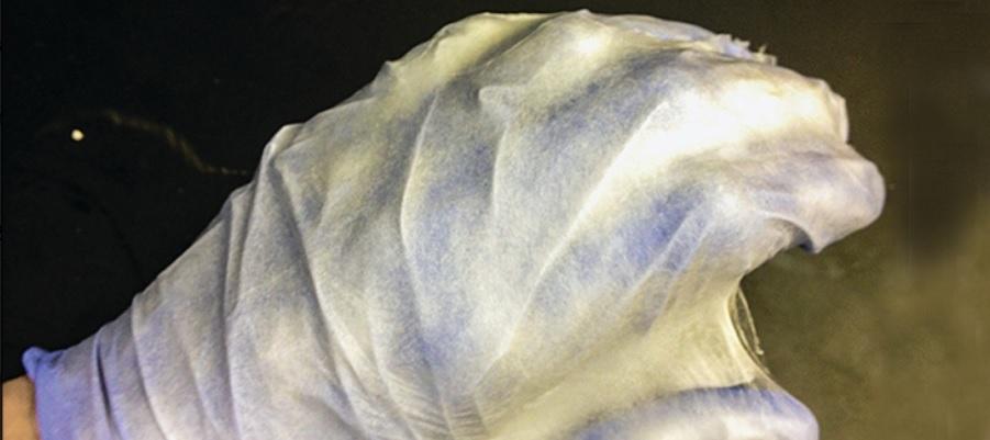Película quirúrgica en aerosol podría reemplazar las suturas