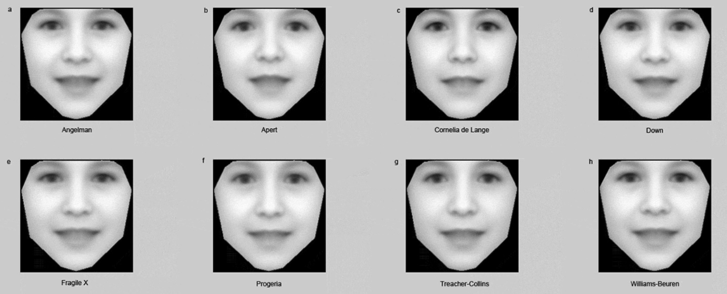 Software detecta enfermedades genéticas raras a partir de fotos