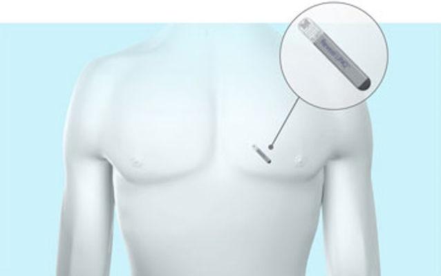 Implantan exitosamente el monitor cardíaco más pequeño del mundo