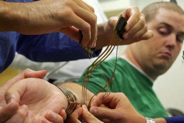 Hombre con parálisis mueve su mano usando la mente