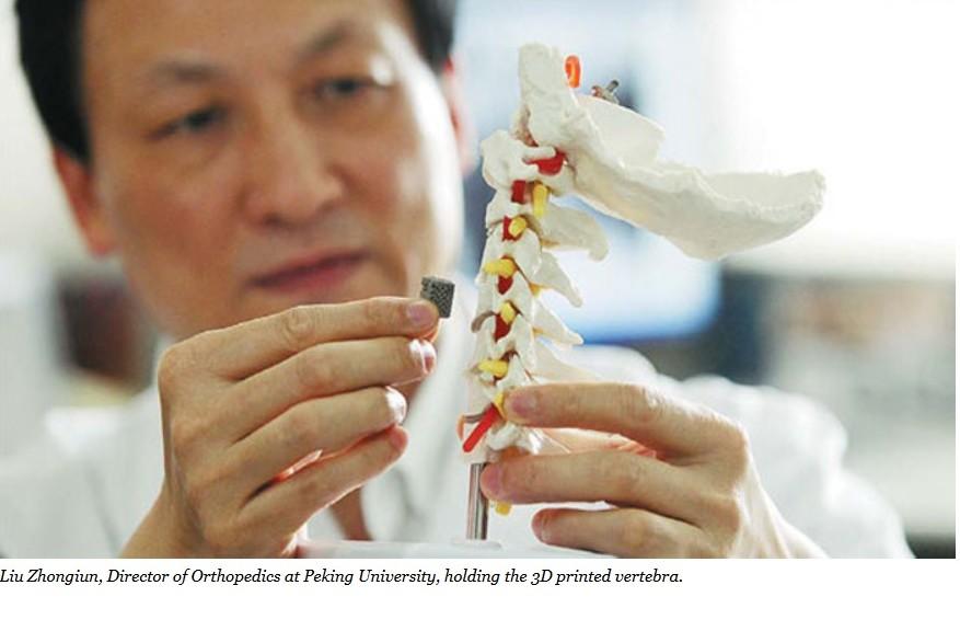 Han implantado la primera vértebra impresa 3D en un niño de 12 años de edad