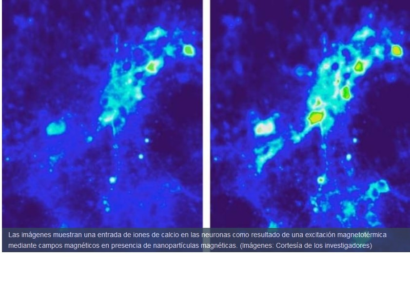 Consiguen estimulación inalámbrica de tejido cerebral