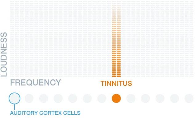 Sitio web ofrece curar el zumbido de los oídos con la música favorita del paciente
