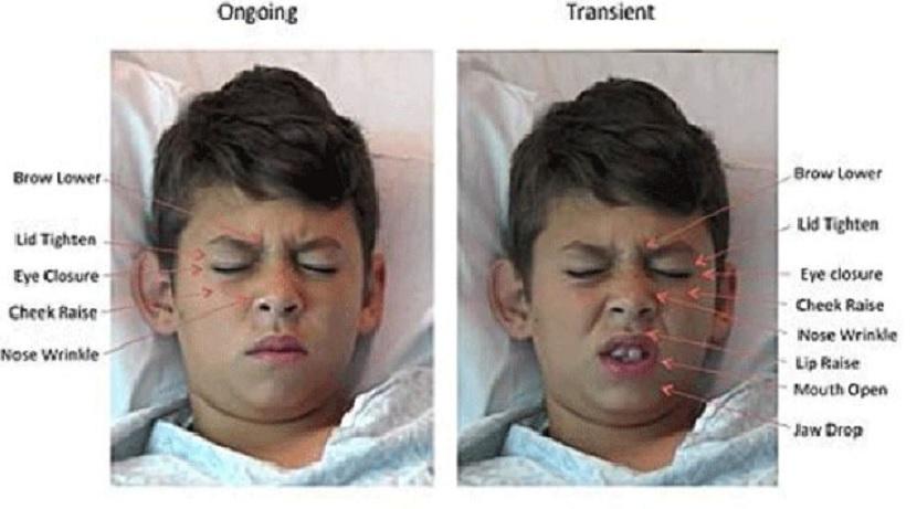Computadores pueden decir qué tanto dolor siente solo mirando su rostro