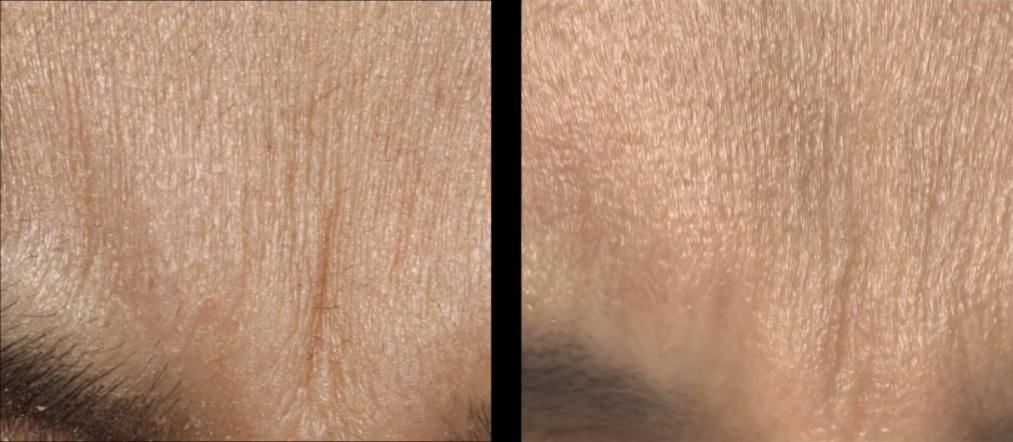 Logran mayor realismo en la simulación de la piel humana