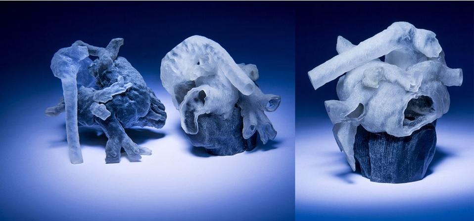 Cirujanos imprimen en 3D modelos del corazón de los pacientes
