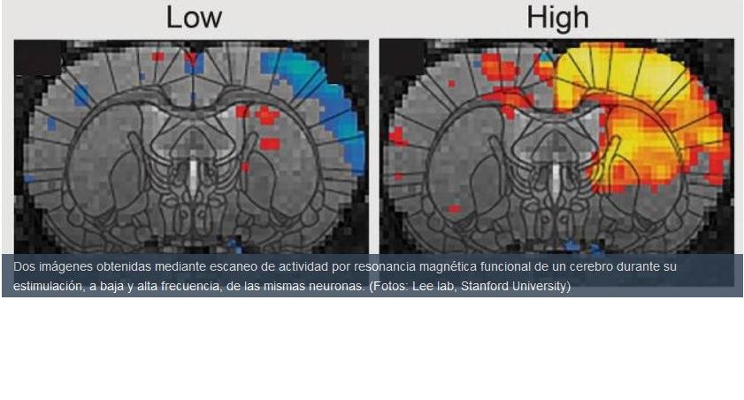 Logran activar artificialmente el interruptor de la inconsciencia en el cerebro