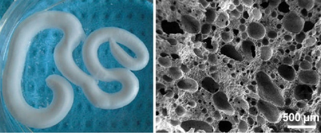 Inventan espuma inyectable para reparar huesos