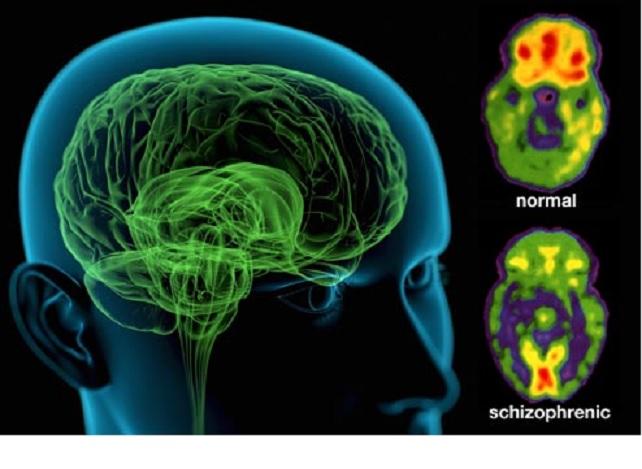 Científicos han hallado finalmente un proceso biológico detrás de la esquizofrenia