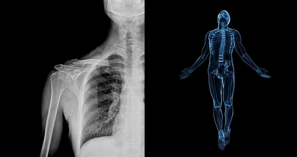 Médicos de Inteligencia Artificial diagnosticarán sus radiografías