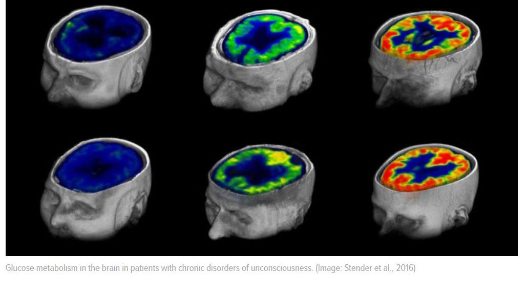 Una prueba simple puede predecir si un paciente comatoso alguna vez despertará
