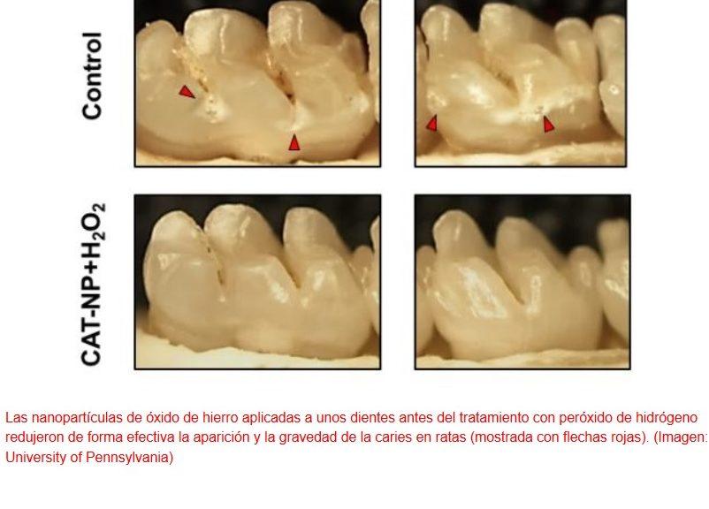 Nanopartículas para destruir la placa dental y las bacterias culpables de ella
