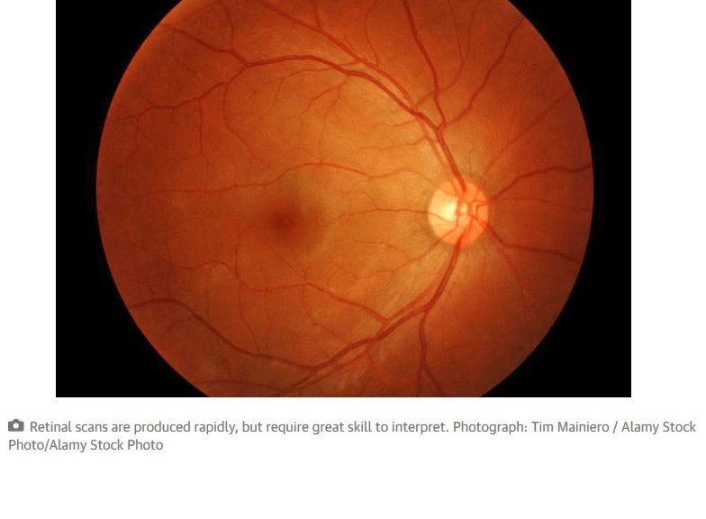 Google DeepMind detectará enfermedades de los ojos con Inteligencia Artificial