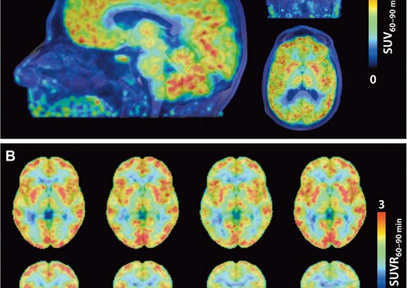 Logran ver por primera vez la activación de genes en el cerebro humano