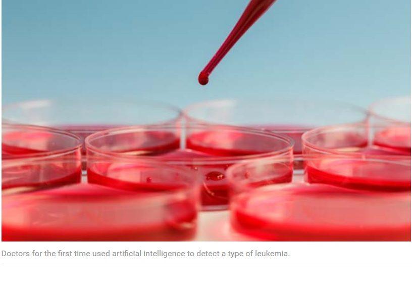 Inteligencia Artificial salvó a una mujer de leucemia
