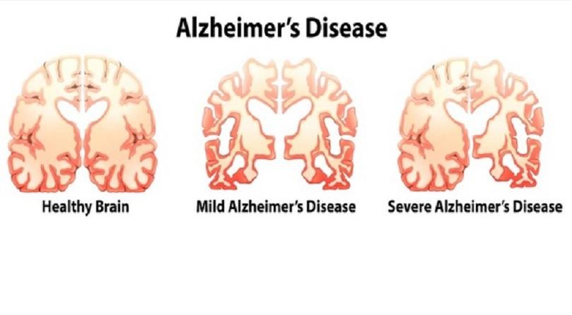 Desarrollado un nuevo método para el diagnóstico del alzhéimer