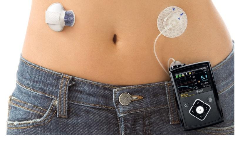 Aprueban en USA la primera bomba automatizada de insulina para diabéticos