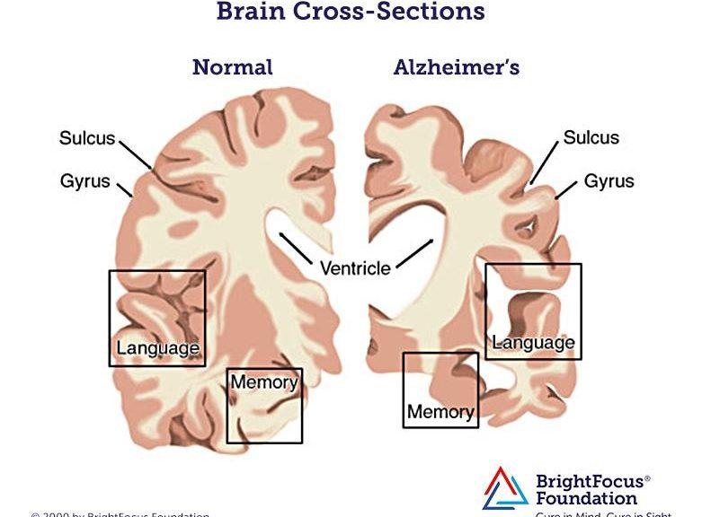 Inyectan un gen en cerebros de ratones que frena el alzhéimer