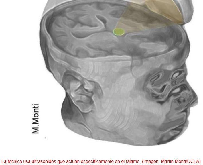 Usan ultrasonidos para reactivar el cerebro de un hombre que estuvo en coma