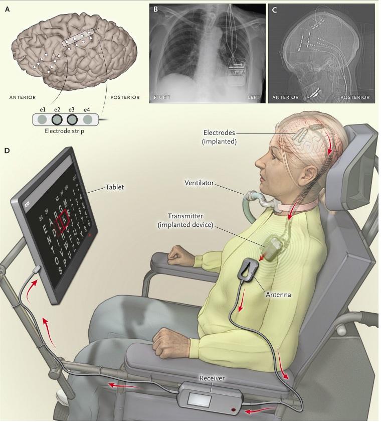implante-cerebral