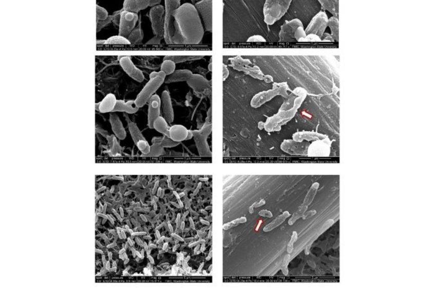Logran matar con electricidad a bacterias nocivas dentro del cuerpo humano