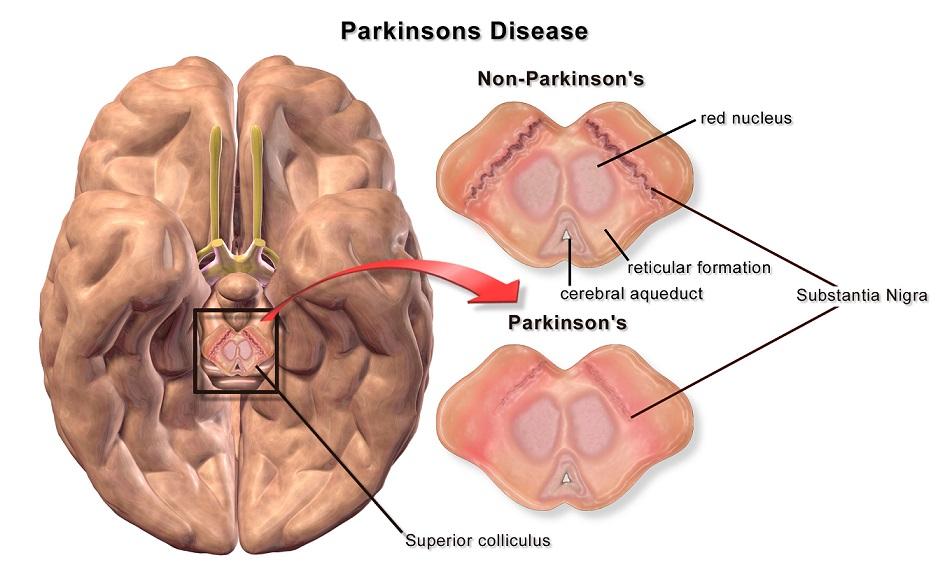 Un compuesto del hígado de los tiburones, capaz de frenar el párkinson