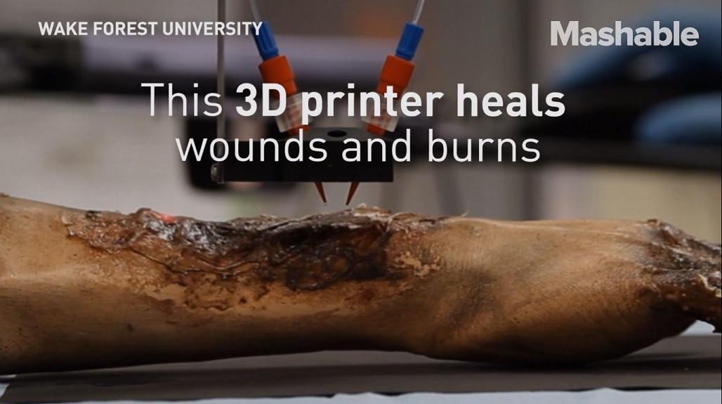 Quemaduras pueden sanar más rápido con una impresora de piel 3D