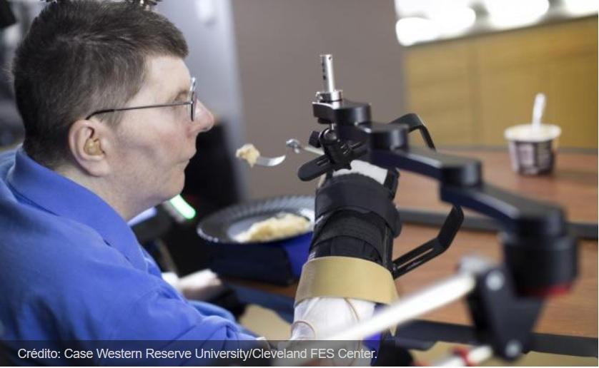 Un hombre tetrapléjico recupera la movilidad de su brazo gracias a un implante en su cerebro
