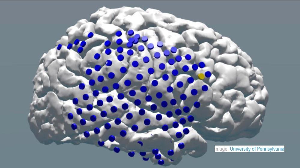 Investigación demuestra que la estimulación eléctrica al cerebro puede ayudar a la memoria