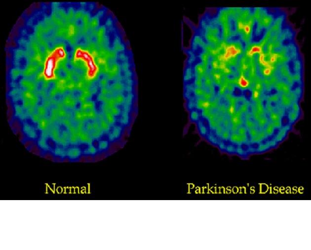 Reprogramar células cerebrales para tratar eficazmente el párkinsonReprogramar células cerebrales para tratar eficazmente el párkinson