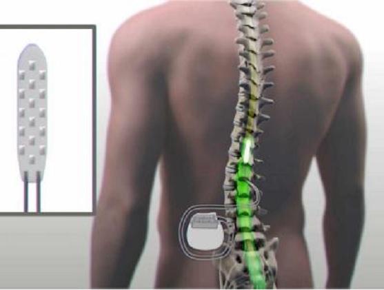 Un dispositivo implantado en la médula osea permite caminar a un paralítico