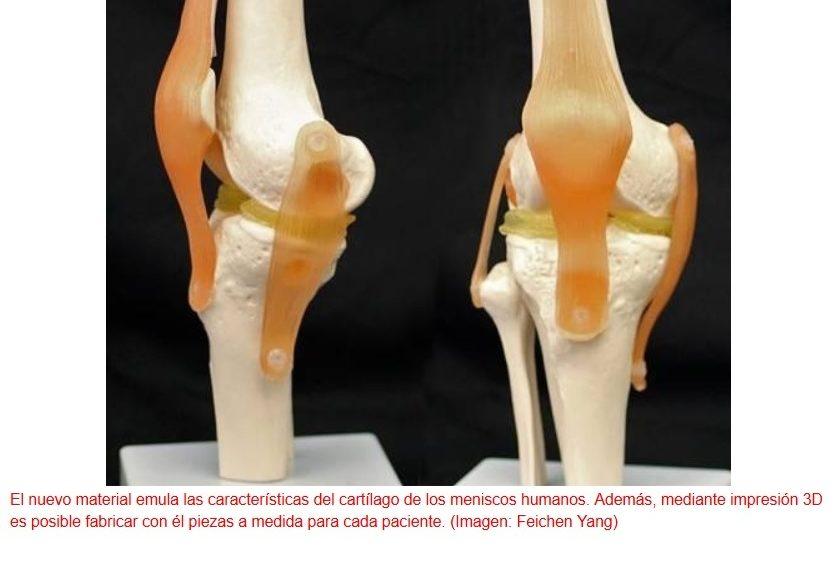 Implantes para rodillas dañadas fabricados por impresión 3D