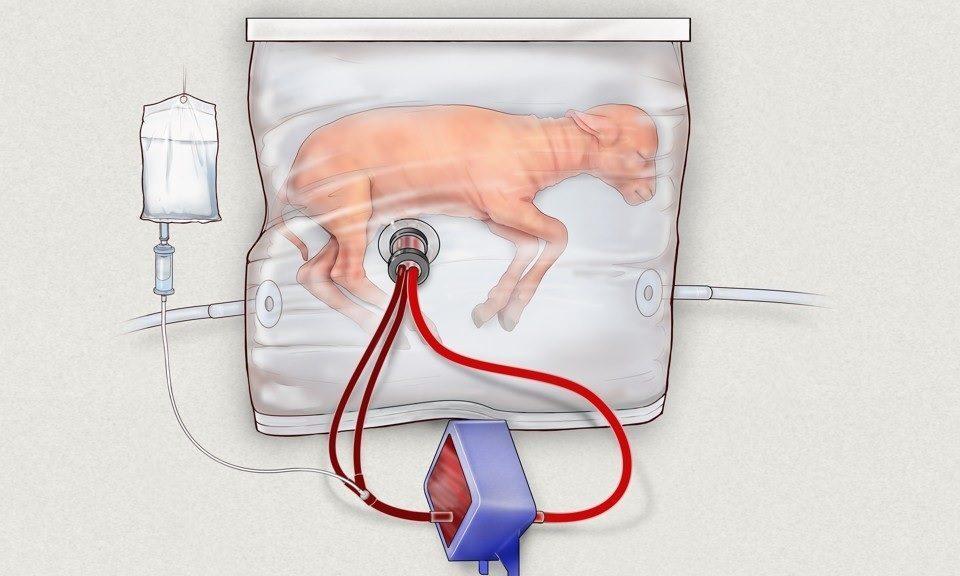 Ovejas bebés crecieron con éxito dentro de este útero artificial, siguiente paso humanos