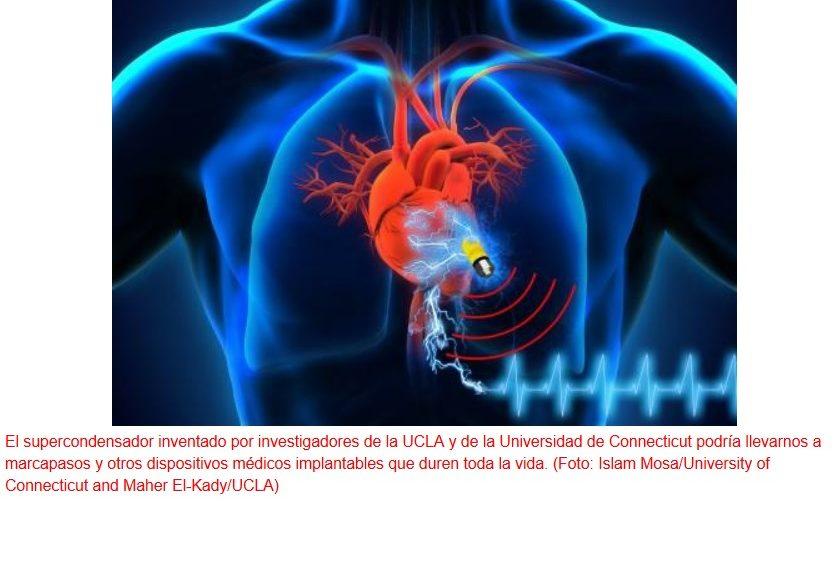 Implantes médicos capaces de obtener su energía del propio cuerpo