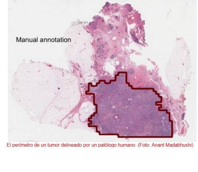 Computadores capaces de detectar cáncer en imágenes