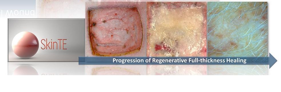 Los humanos podrían regenerar la piel después de quemaduras graves