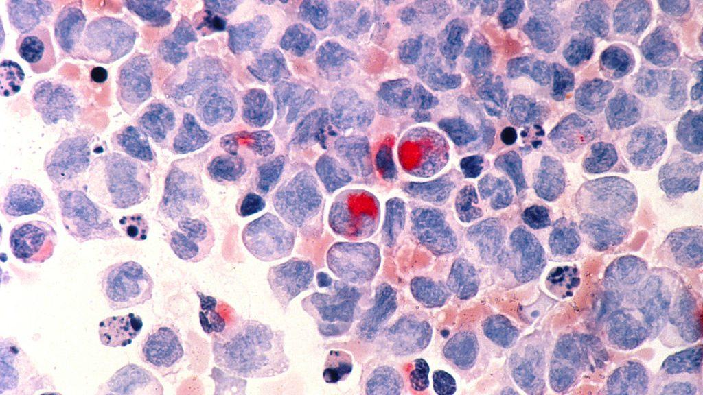 EEUU aprueba un histórico tratamiento contra la leucemia infantil: terapia génica