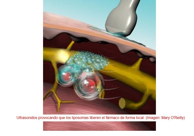 Activación ultrasónica de analgésicos