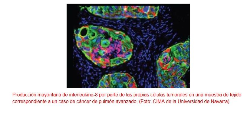 Un nuevo biomarcador predice qué pacientes con cáncer responderán mejor a la inmunoterapia