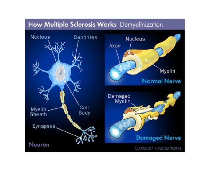 Revierten la esclerosis múltiple avanzada en ratones