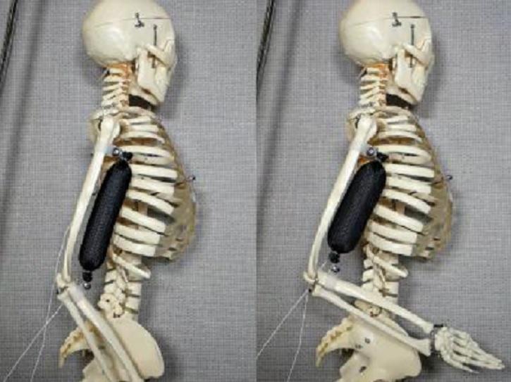 Crean un músculo artificial que imita los movimientos humanos